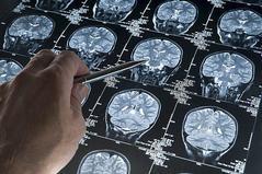 Escáneres cerebrales de una persona con Alzheimer.