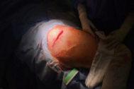 Una operación de cadera en el Hospital del Vinalopó llevada a cabo con esta técnica pionera .