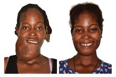 El antes y el después de Pascaline Patienda Kabore, una joven de 23 años de Burkina Faso, a la que acaban de extirpar un tumor de la mandíbula.