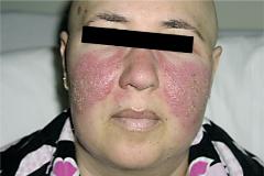 Una paciente con el eritema característico de la enfermedad.