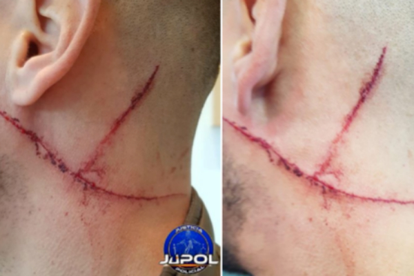 Imagen del herido compartida en Twitter por e| sindicato policial Jupol | @JupolNacional