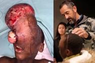 El niño antes de la intervención y después, durante una revisión con el doctor Cavadas.