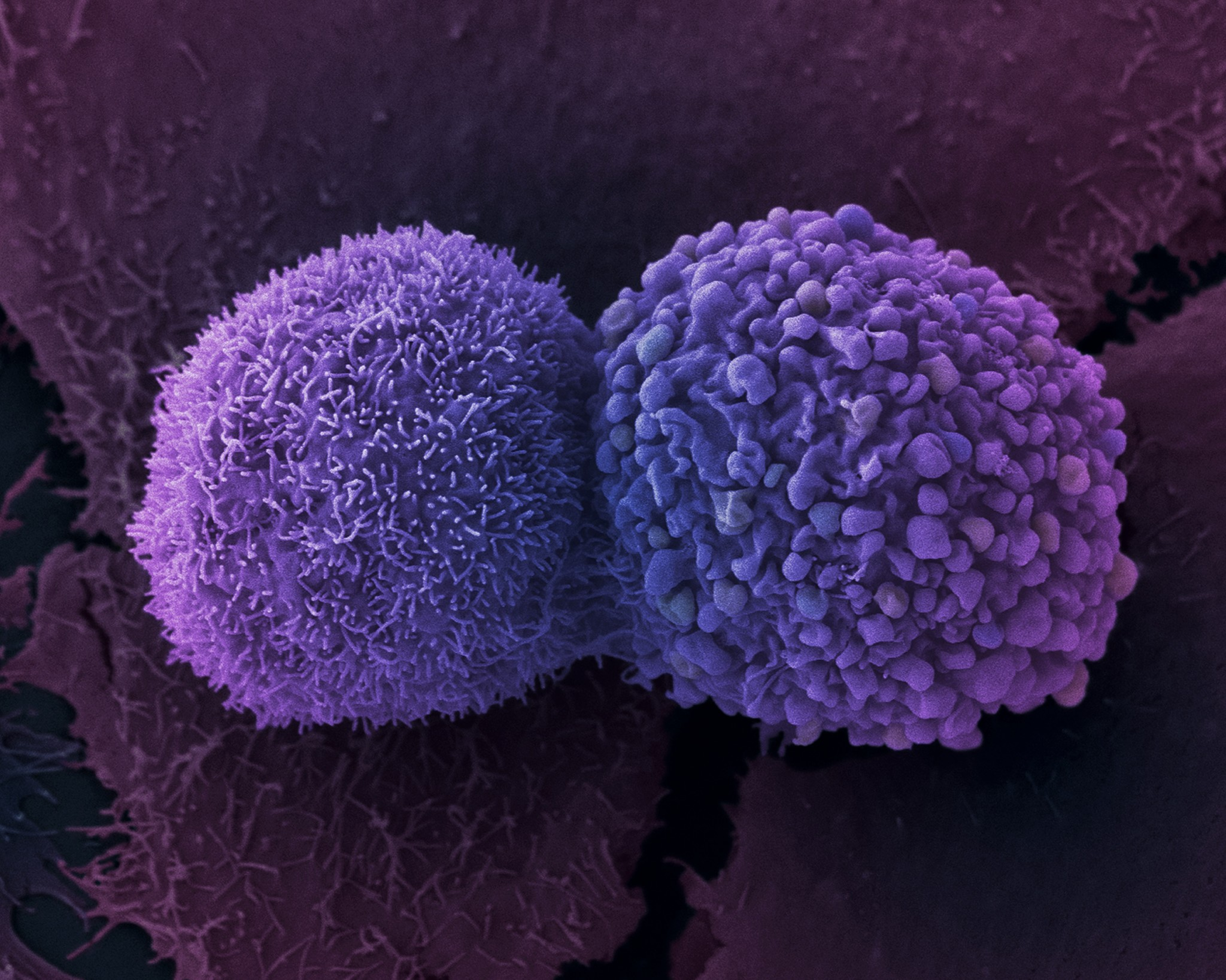 Células de cáncer de pulmón.