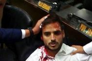 Víctima de Nicolás Maduro. El diputado venezolano Armando Armas, que ha pedido una investigación al Congreso, fue uno de los parlamentarios heridos dentro del Palacio Federal Legislativo cuando partidarios del dictador Maduro entraron para golpear a la oposición.