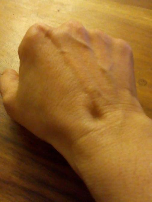 Una de las hendiduras que provoca la lipoatrofia en uno de los empleados de Piovera Azul.