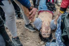 Un joven migrante herido en Pazarkule.
