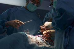 Varios cirujanos realizan un trasplante.
