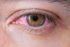 El coronavirus también puede provocar conjuntivitis
