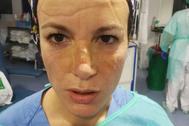 Una de las enfermeras, con el rostro marcado por las gafas y mascarillas.