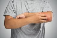 ¿Puede producir el coronavirus lesiones específicas en la piel?