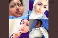 La joven Malak Haidar al Zubaidi, antes y después del ataque.