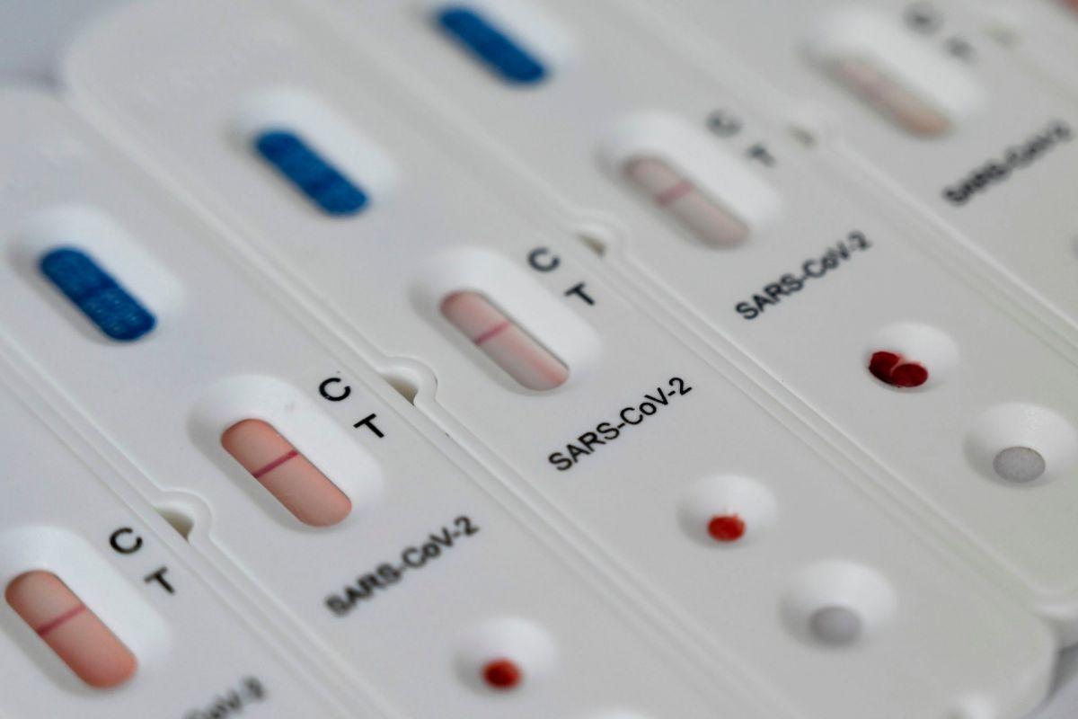 Detalle de un test rápido de anticuerpos frente al SARS-Cov-2, con resultado negativo.