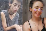 La joven cuando estaba bajo los efectos de las drogas y en la actualidad.