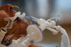 Un paciente de Covid intubado en un hospital en Santiago de Chile.