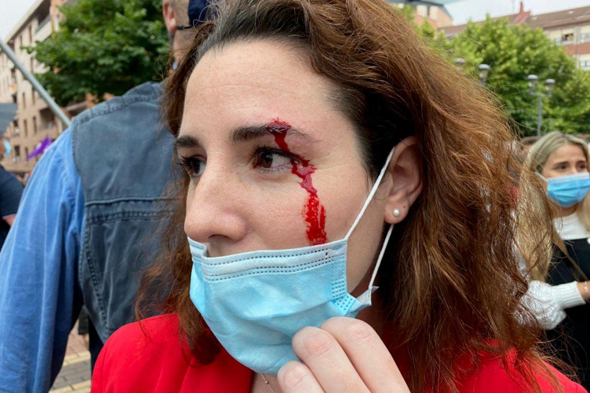 Rocío de Meer tras la agresión, en una foto compartida por Vox en Twitter