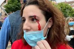 La diputada Rocío de Meer, tras el ataque, en una foto compartida por Vox en Twitter