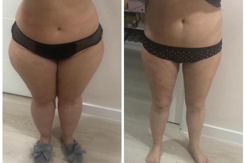 Marina, paciente de lipedema, antes y después de la operación quirúrgica