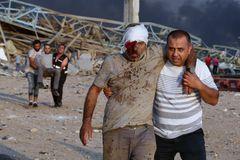 Hombres heridos por la explosión son evacuados del puerto de Beirut.