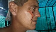 """Frank Cuesta sufre el ataque de una garza: """"Fue directa al ojo"""""""