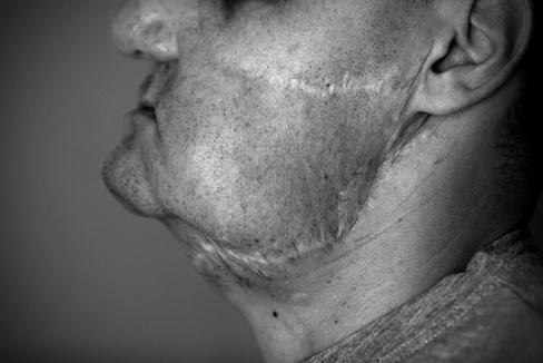 """Habla el primer español al que se le trasplantó la cara: """"Si no te quieres, nunca serás feliz"""""""
