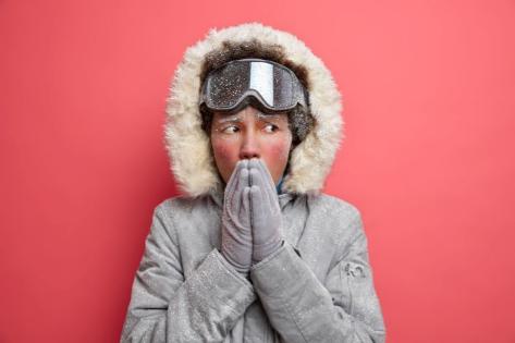 Qué hacer para que no te arda la piel cuando vuelves de la nieve