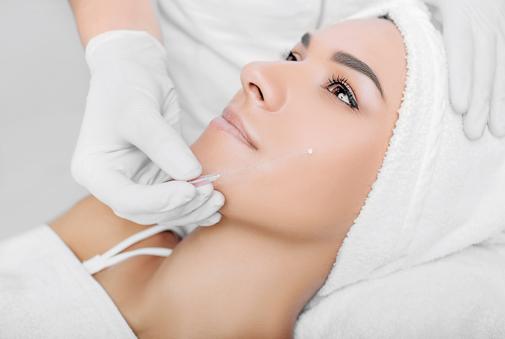Hilos tensores lifting sin cirugía rejuvenecimiento facial