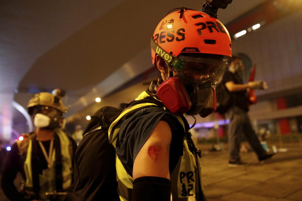 Un periodista muestra una herida durante una marcha en Hong Kong.