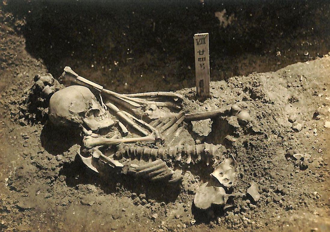 El esqueleto del individuo que sufrió un ataque de tiburón hace 3.000 años