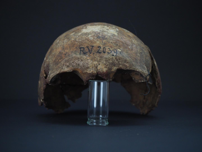 Parte del cráneo