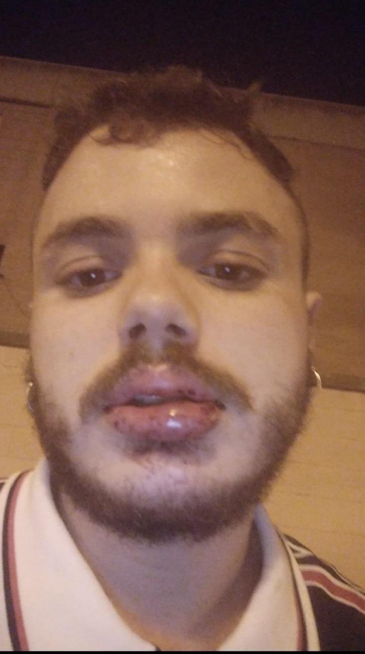 Alejandro, con el labio partido tras ser agredido en Valencia.