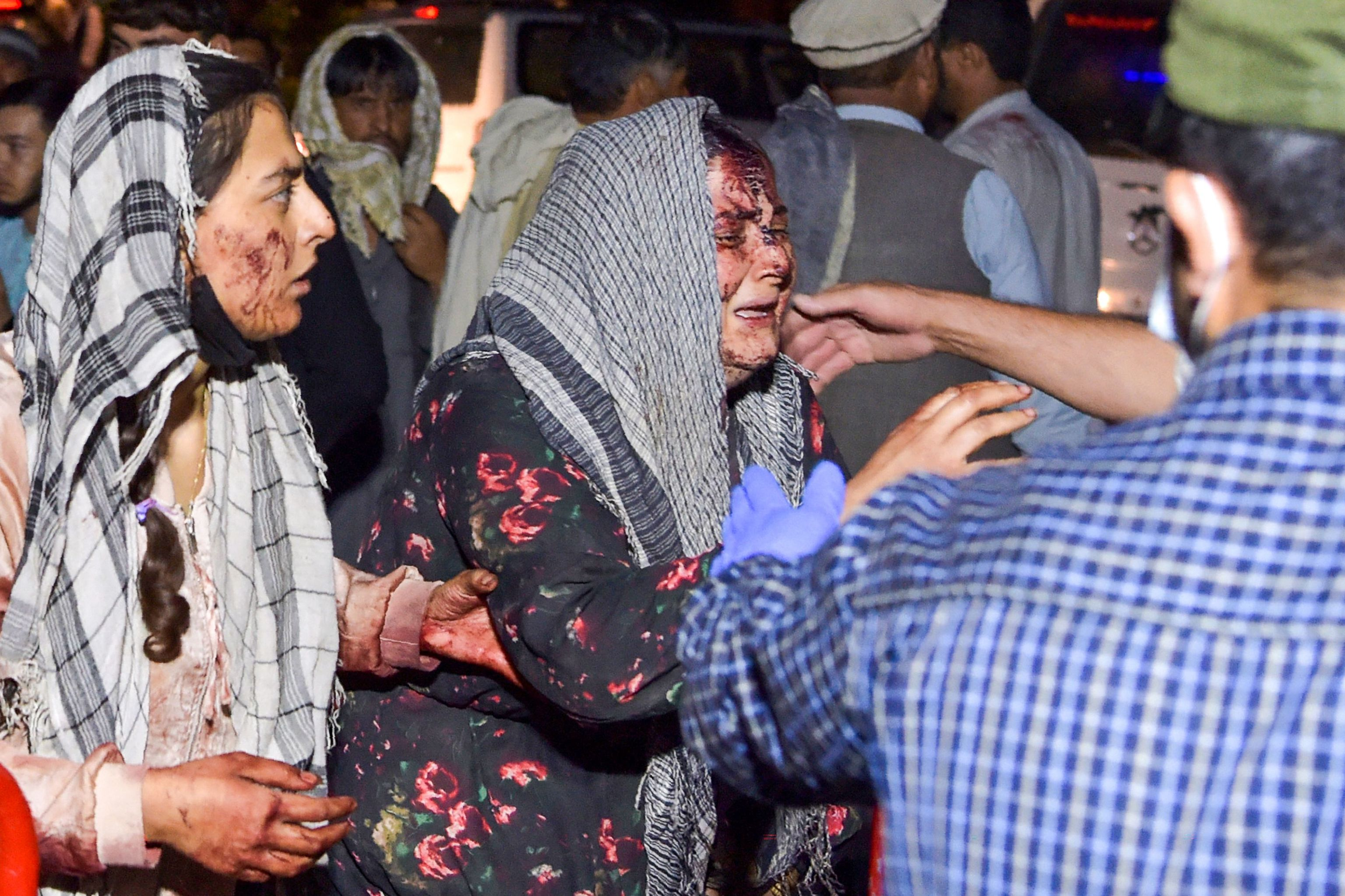 Mujeres heridas en el atentado en Kabul.