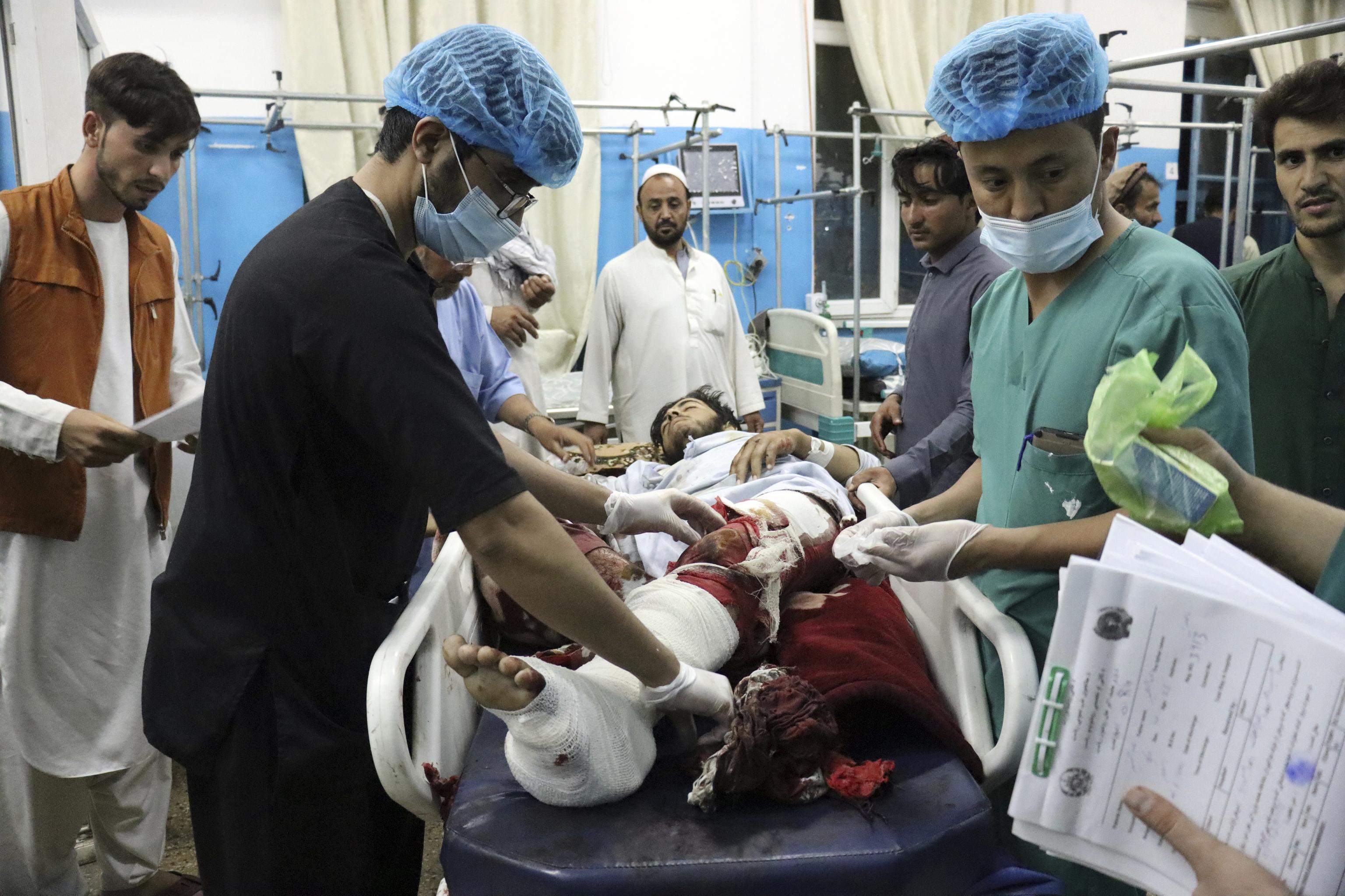 Una víctima del atentado es asistida en un hospital de Kabul.