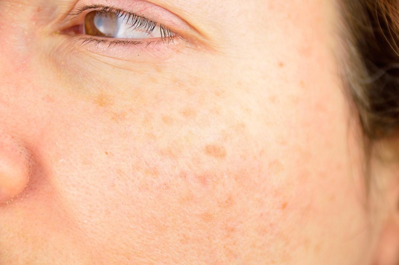 Manchas del sol en la cara: ¿por qué salen y cómo se quitan?