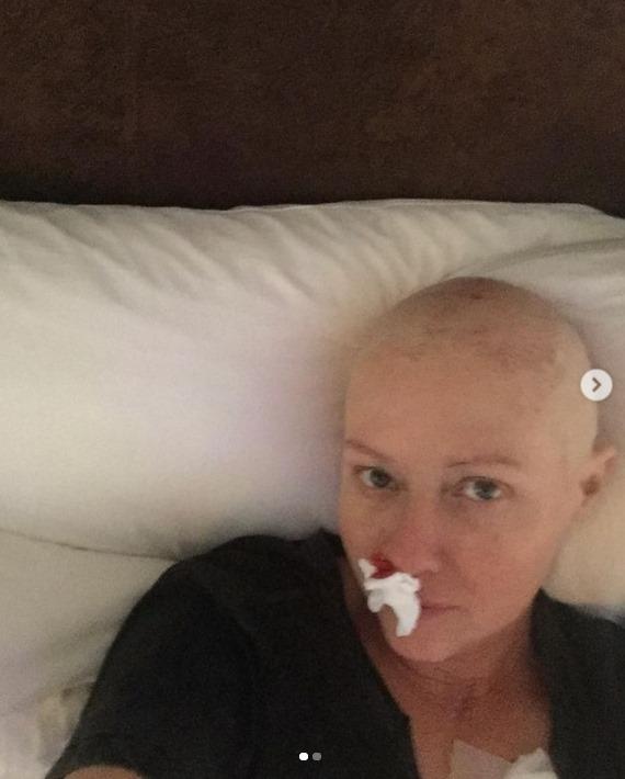 La actriz Shannen Doherty, en una de las recientes imágenes compartidas en su IG.