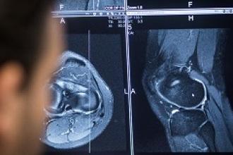 Pionero en mejorar las operaciones de prótesis de rodilla