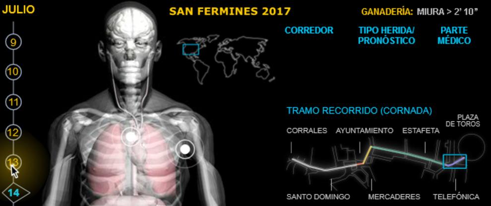 San Fermines: Heridos por asta en los encierros