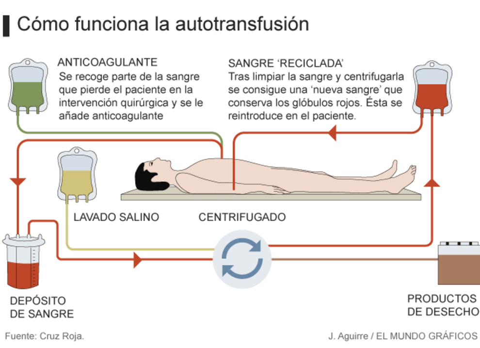Autotransfusion de sangre