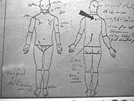 Dibujo de la autopsia realizado por los médicos que atendieron a Kennedy.