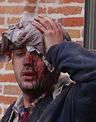 Uno de los heridos, a las puertas del polideportivo de Daoíz y Velarde. (Jaime Villanueva)