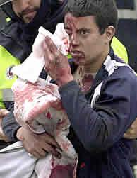 Uno de los heridos en los atentados. (EFE)