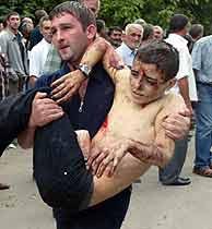 Un hombre traslada a un niño herido. VEA MÁS IMÁGENES.