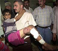 Un iraquí traslada a un niño herido al hospital. (AP)