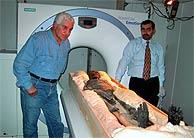 Estudio radiológico de los restos de Tutankamon. (Foto: AP)