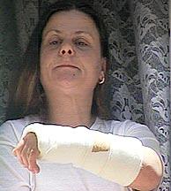 La presunta agredida, en su domicilio de Cúllar Vega, en Granada. (Foto: EFE)