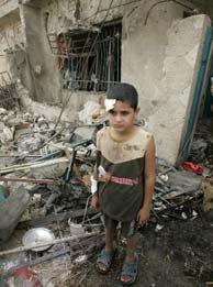 Un niño herido en el atentado, junto su vivienda que resultó dañada. (Foto: EFE)