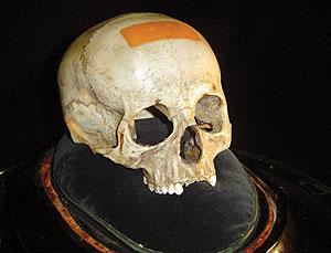 El supuesto cráneo de Mozart, propiedad de la Fundación Mozarteum de Salzburgo. (Foto: AP)