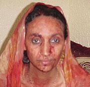 Aminetu, tras ser golpeada por la policía. (elmundo.es)