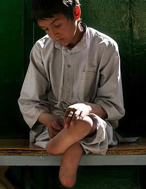 Un niño afgano, con las piernas amputadas. (Foto: AP)