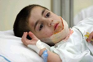 Un niño herido cerca de Tiro durante un bomberdeo israelí. (Foto: AFP)