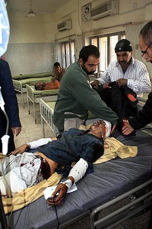 Uno de los heridos en los ataques. (Foto: AFP)